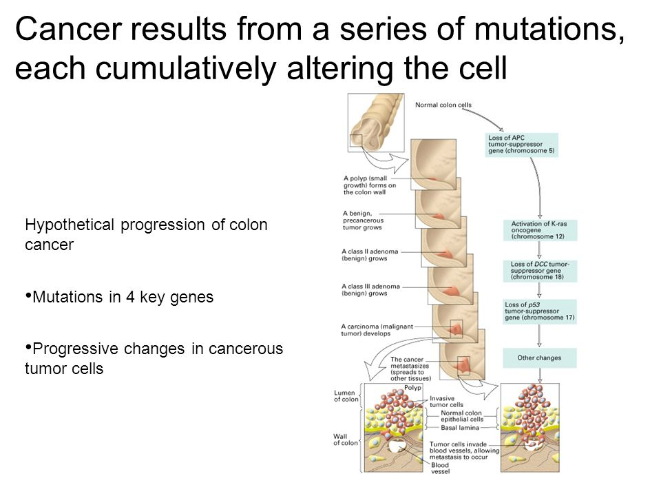 Cancer results from a series of mutations, each cumulatively altering the cell Hypothetical progression of colon cancer Mutations in 4 key genes Progressive changes in cancerous tumor cells