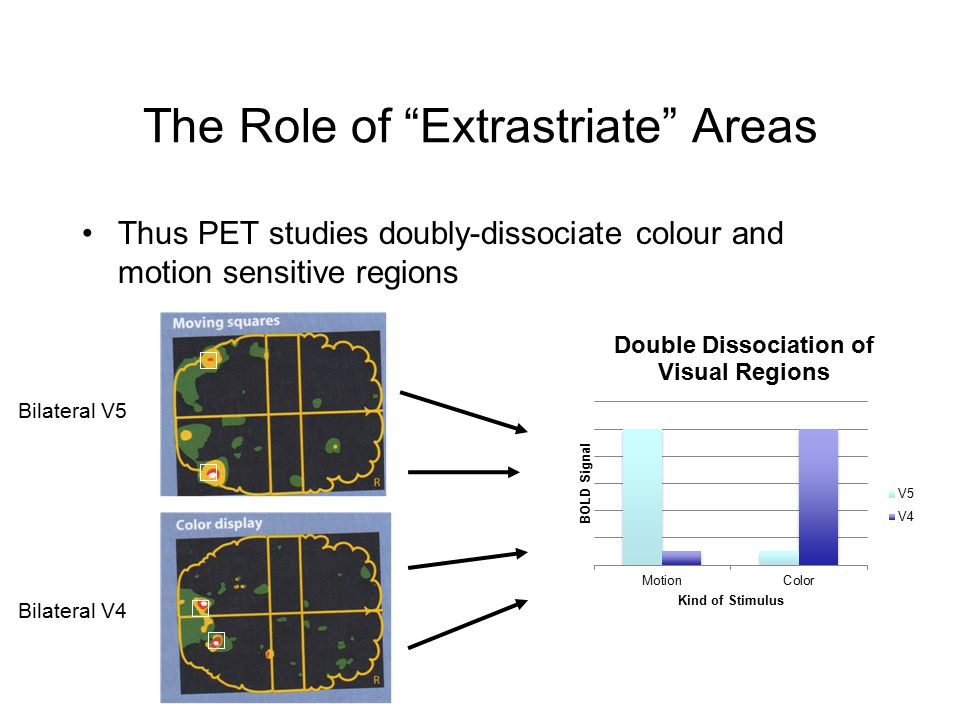 The Role of Extrastriate Areas Thus PET studies doubly-dissociate colour and motion sensitive regions Bilateral V5 Bilateral V4