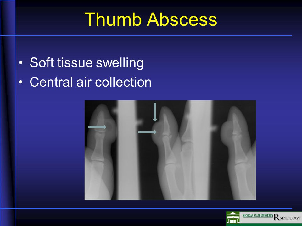 Thumb Abscess Soft tissue swelling Central air collection