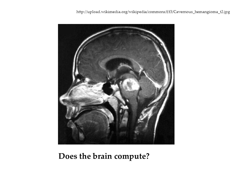 Does the brain compute