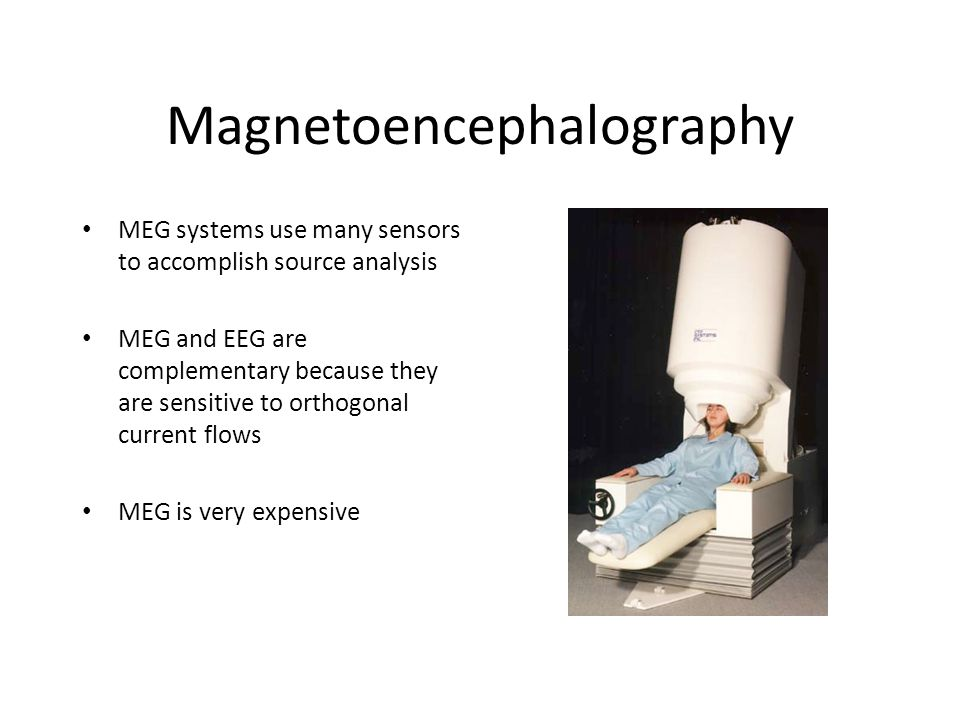 Magnetoencephalography MEG systems use many sensors to accomplish source analysis MEG and EEG are complementary because they are sensitive to orthogonal current flows MEG is very expensive