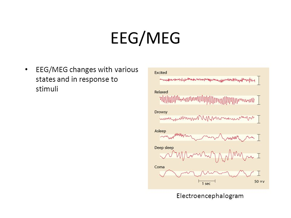 EEG/MEG EEG/MEG changes with various states and in response to stimuli Electroencephalogram