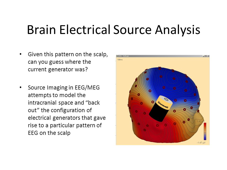 Brain Electrical Source Analysis Given this pattern on the scalp, can you guess where the current generator was.
