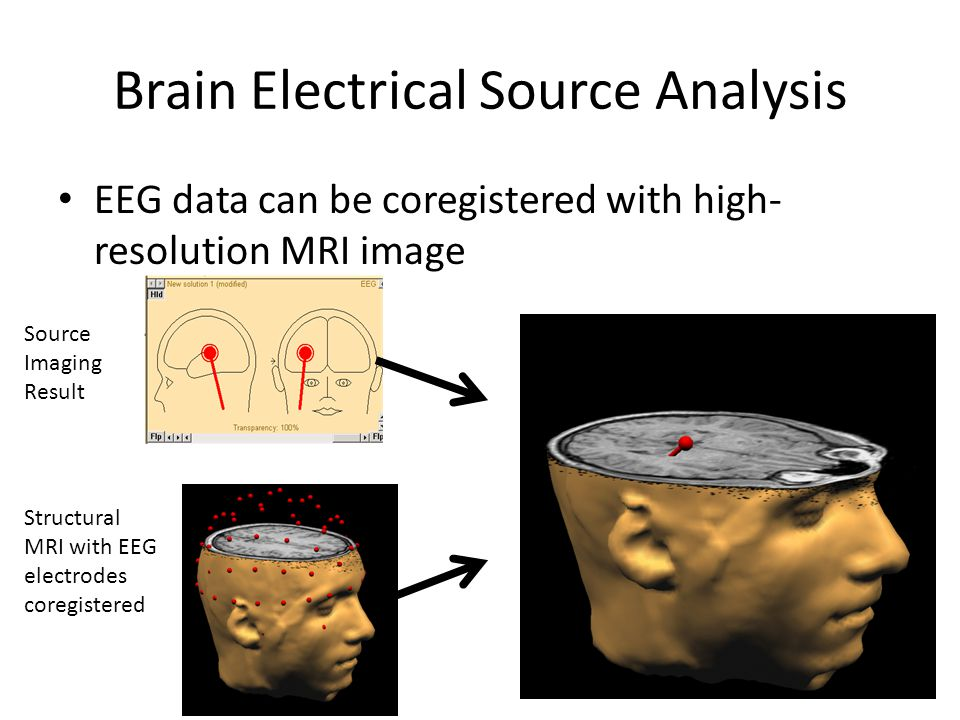 Brain Electrical Source Analysis EEG data can be coregistered with high- resolution MRI image Source Imaging Result Structural MRI with EEG electrodes coregistered