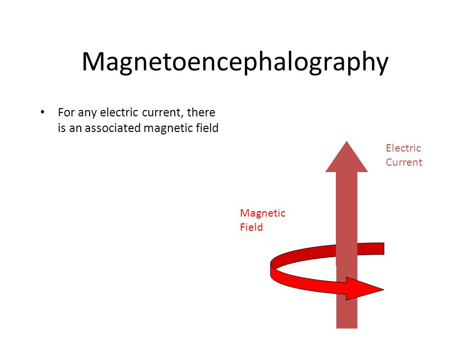 Magnetoencephalography For any electric current, there is an associated magnetic field Magnetic Field Electric Current