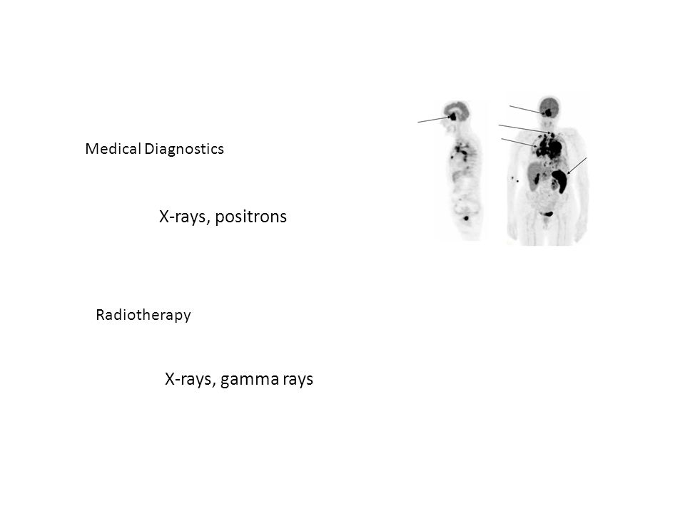 Medical Diagnostics X-rays, positrons Radiotherapy X-rays, gamma rays