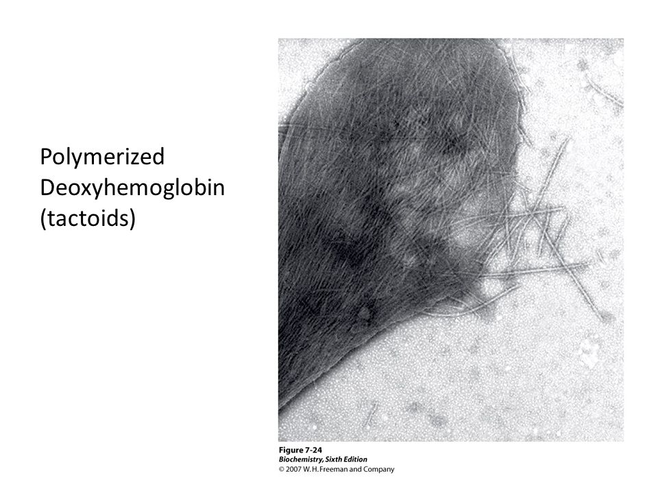 Polymerized Deoxyhemoglobin (tactoids)