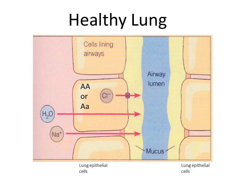 Healthy Lung Lung epithelial cells Lung epithelial cells AA or Aa
