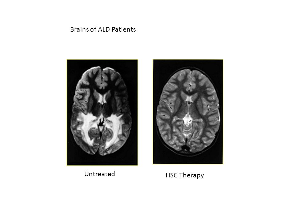 Brains of ALD Patients Untreated HSC Therapy