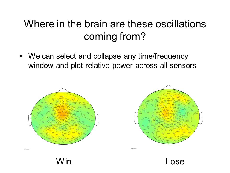 Where in the brain are these oscillations coming from.