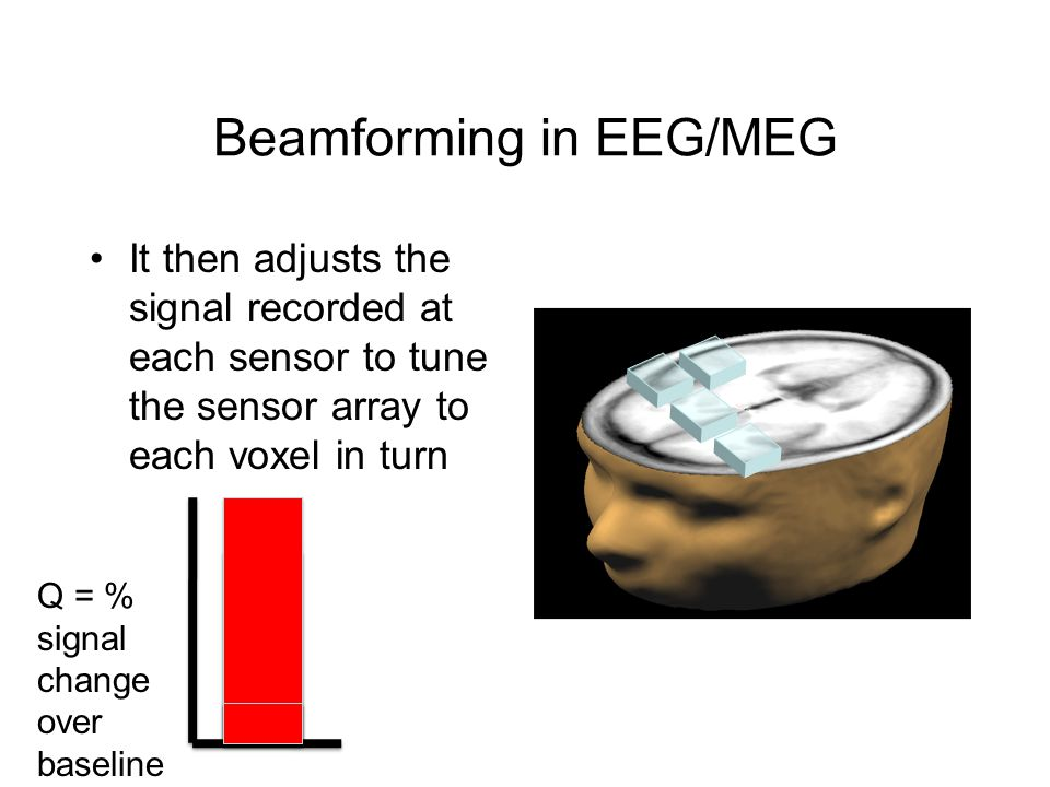 Beamforming in EEG/MEG It then adjusts the signal recorded at each sensor to tune the sensor array to each voxel in turn Q = % signal change over baseline