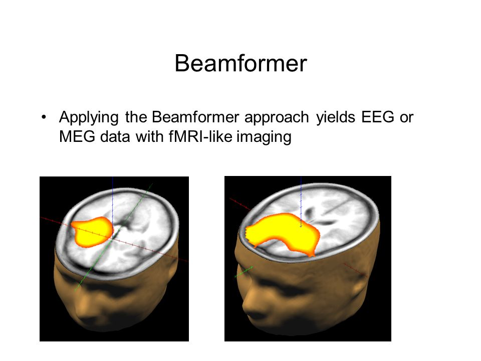 Beamformer Applying the Beamformer approach yields EEG or MEG data with fMRI-like imaging L R
