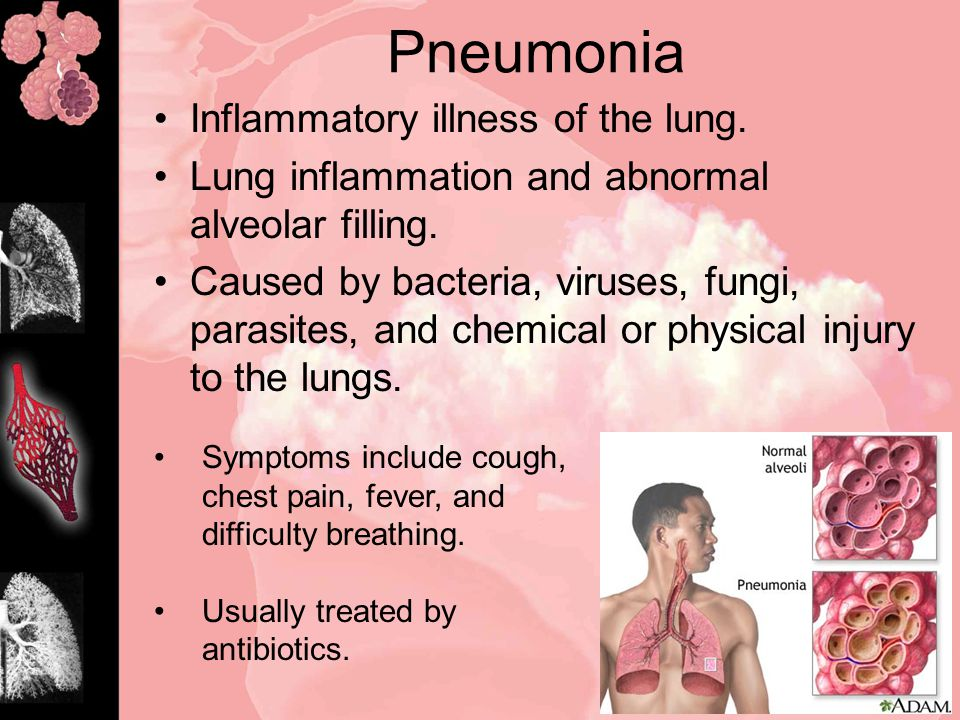 Pneumonia Inflammatory illness of the lung. Lung inflammation and abnormal alveolar filling.
