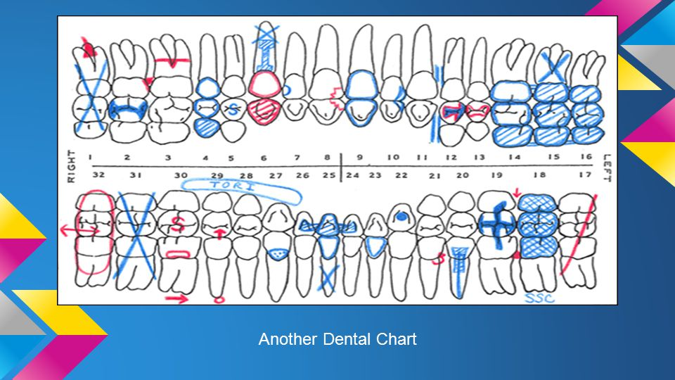 Charting conditions of the teeth i dental charts each patient 9 another dental chart ccuart Choice Image
