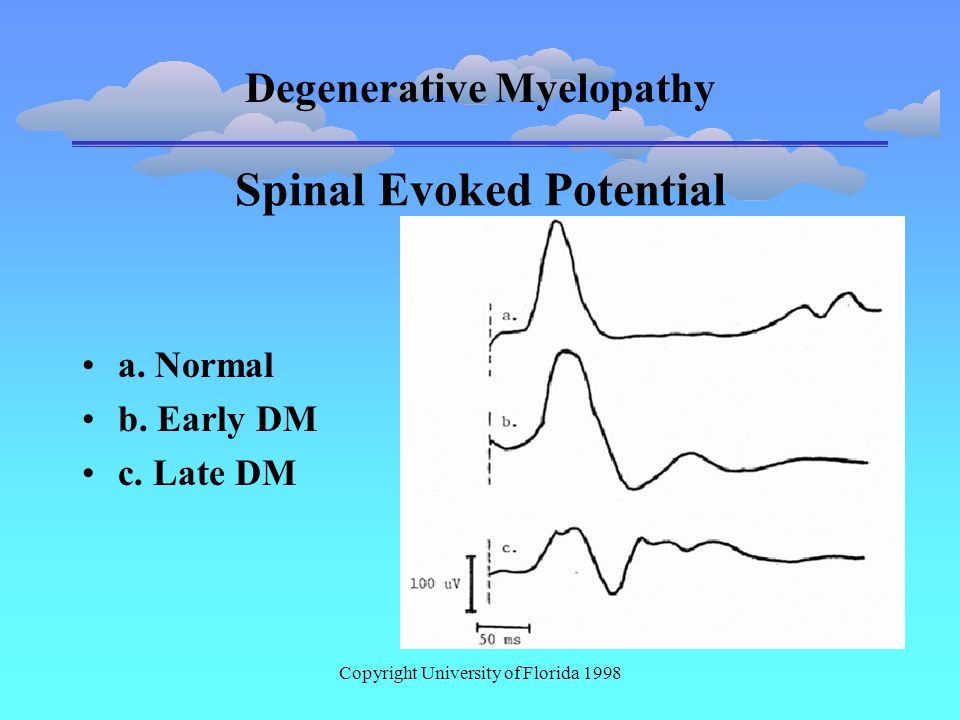 Degenerative Myelopathy Copyright University of Florida 1998 Spinal Evoked Potential a.