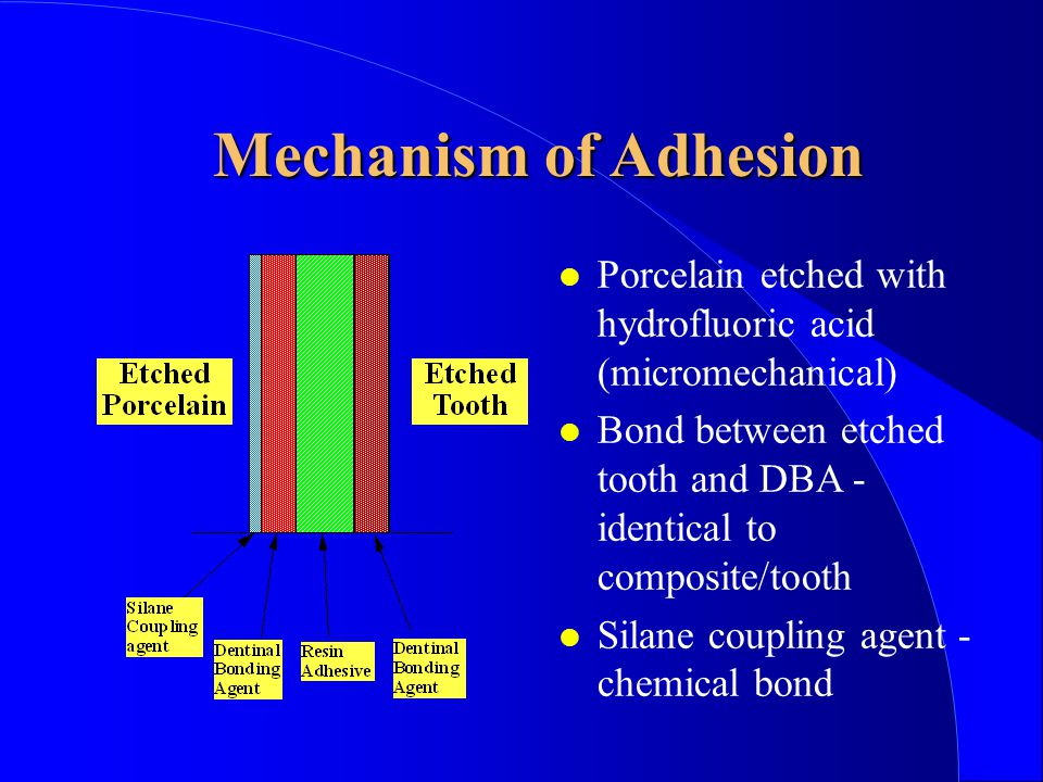 Mechanism of Adhesion Porcelain etched with hydrofluoric acid (micromechanical) Bond between etched tooth and DBA - identical to composite/tooth Silane coupling agent - chemical bond