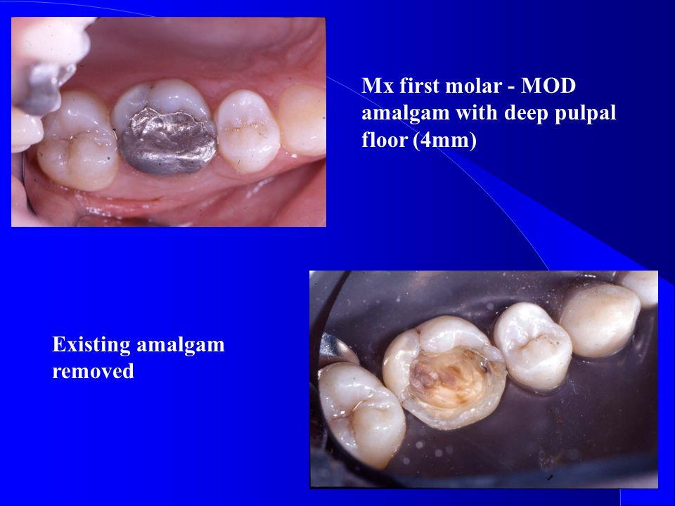 Mx first molar - MOD amalgam with deep pulpal floor (4mm) Existing amalgam removed