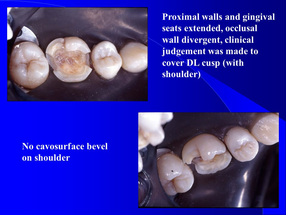Proximal walls and gingival seats extended, occlusal wall divergent, clinical judgement was made to cover DL cusp (with shoulder) No cavosurface bevel on shoulder