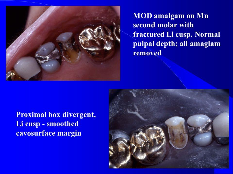 MOD amalgam on Mn second molar with fractured Li cusp.