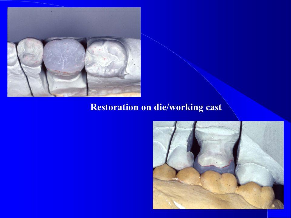 Restoration on die/working cast