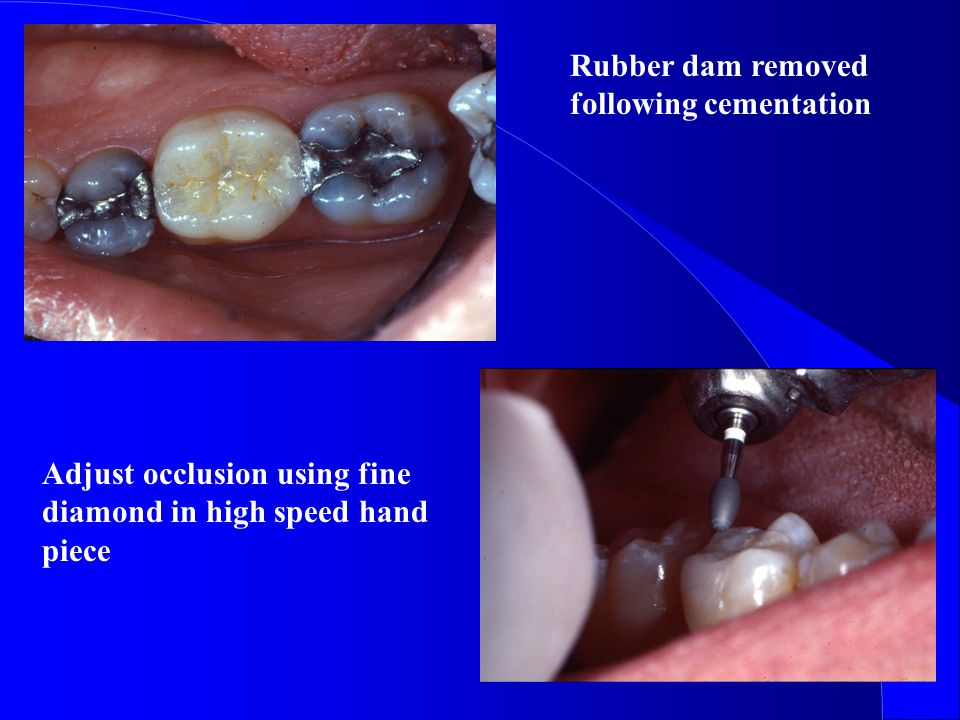 Rubber dam removed following cementation Adjust occlusion using fine diamond in high speed hand piece