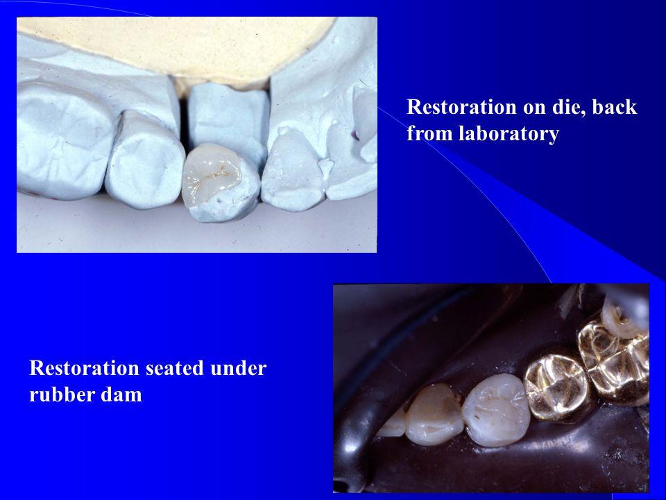 Restoration on die, back from laboratory Restoration seated under rubber dam