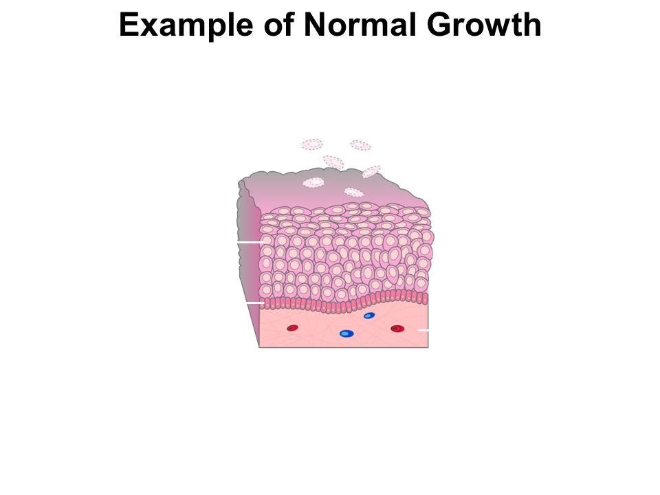 Example of Normal Growth Cell migration Dermis Dividing cells in basal layer Dead cells shed from outer surface Epidermis