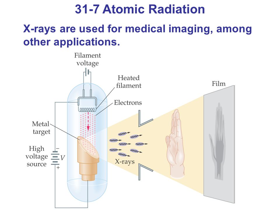 31-7 Atomic Radiation X-rays are used for medical imaging, among other applications.