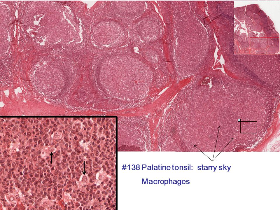 #138 Palatine tonsil: starry sky Macrophages
