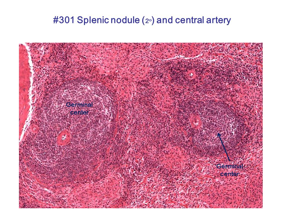 #301 Splenic nodule ( 2 o ) and central artery Germinal center