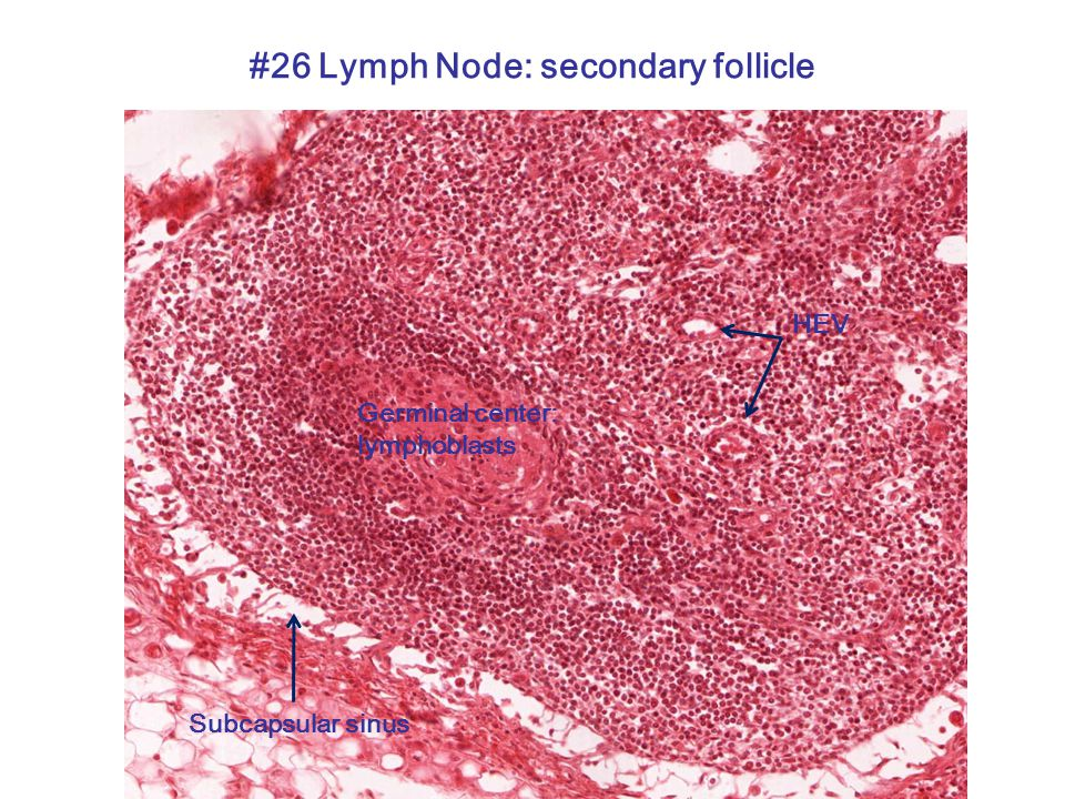 #26 Lymph Node: secondary follicle Germinal center: lymphoblasts HEV Subcapsular sinus