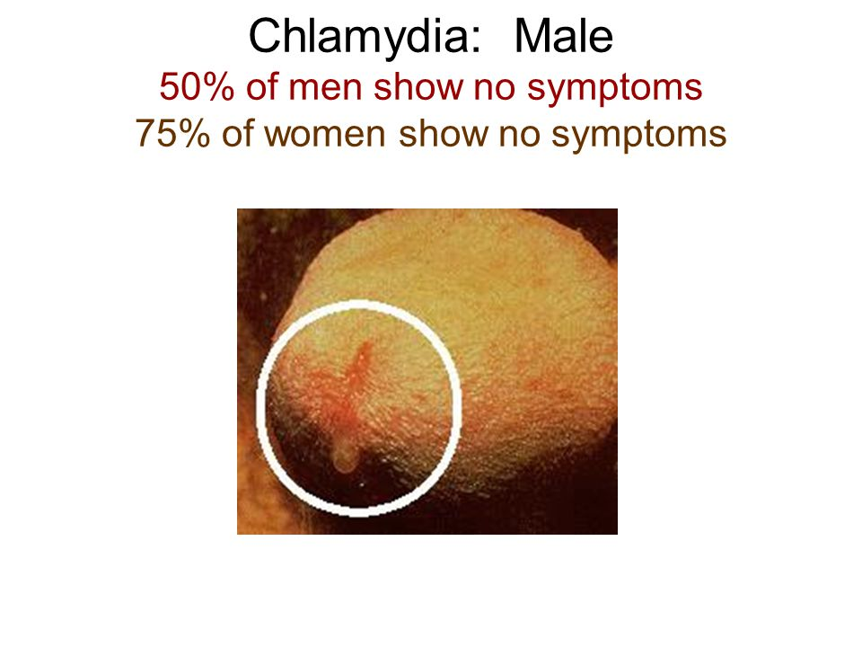 Chlamydia: Male 50% of men show no symptoms 75% of women show no symptoms