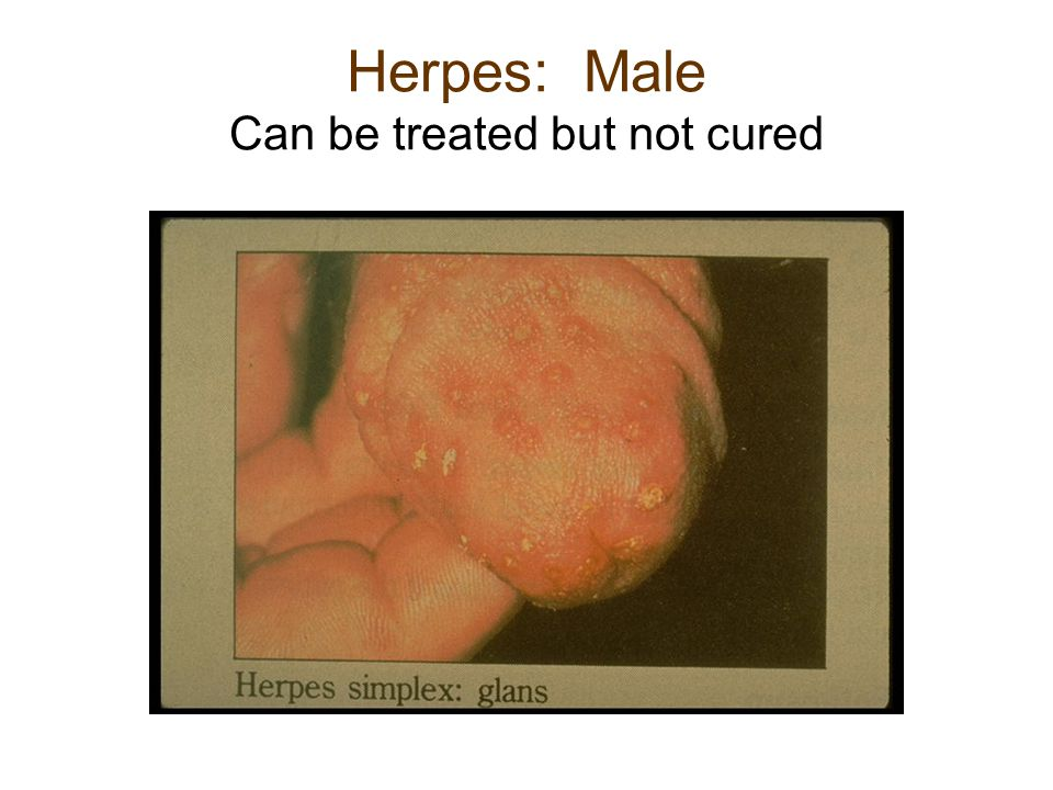 Herpes: Male Can be treated but not cured