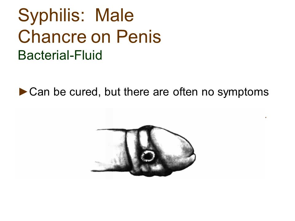 Syphilis: Male Chancre on Penis Bacterial-Fluid ►Can be cured, but there are often no symptoms ►Symptoms can be present and then disappear