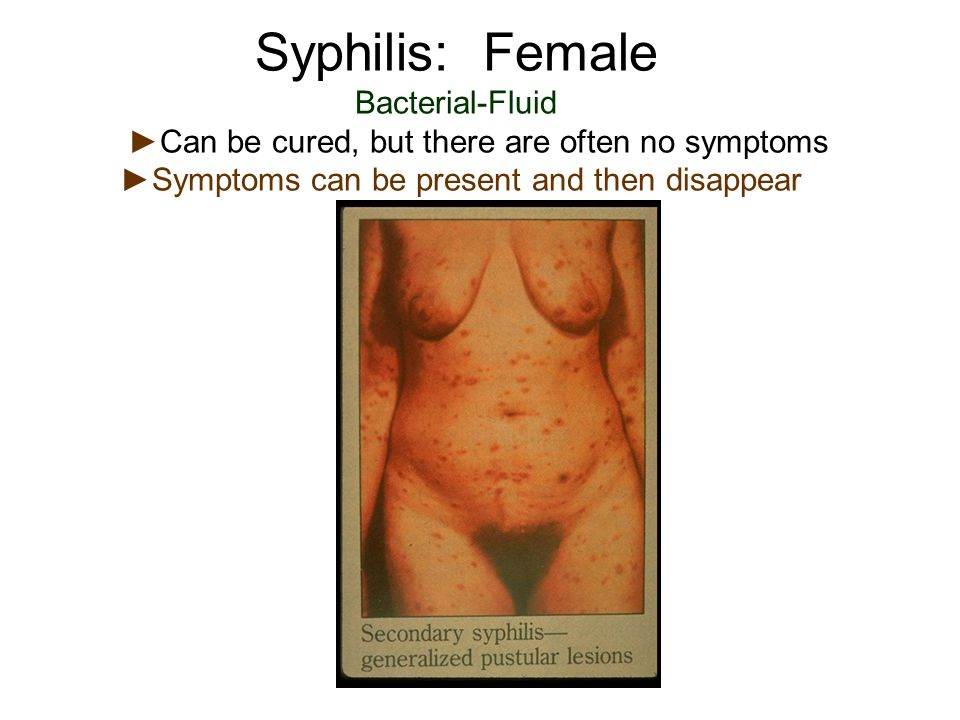 Syphilis: Female Bacterial-Fluid ►Can be cured, but there are often no symptoms ►Symptoms can be present and then disappear