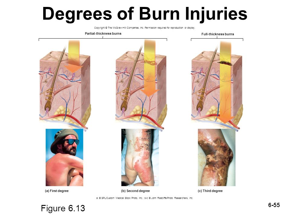 burn degrees There are three types of burns: first, second and third degrees this categorization of burns is in relation to the layers of skin affected by the heating element a first degree burn is a mild burn on the first layer of skin, or epidermis.