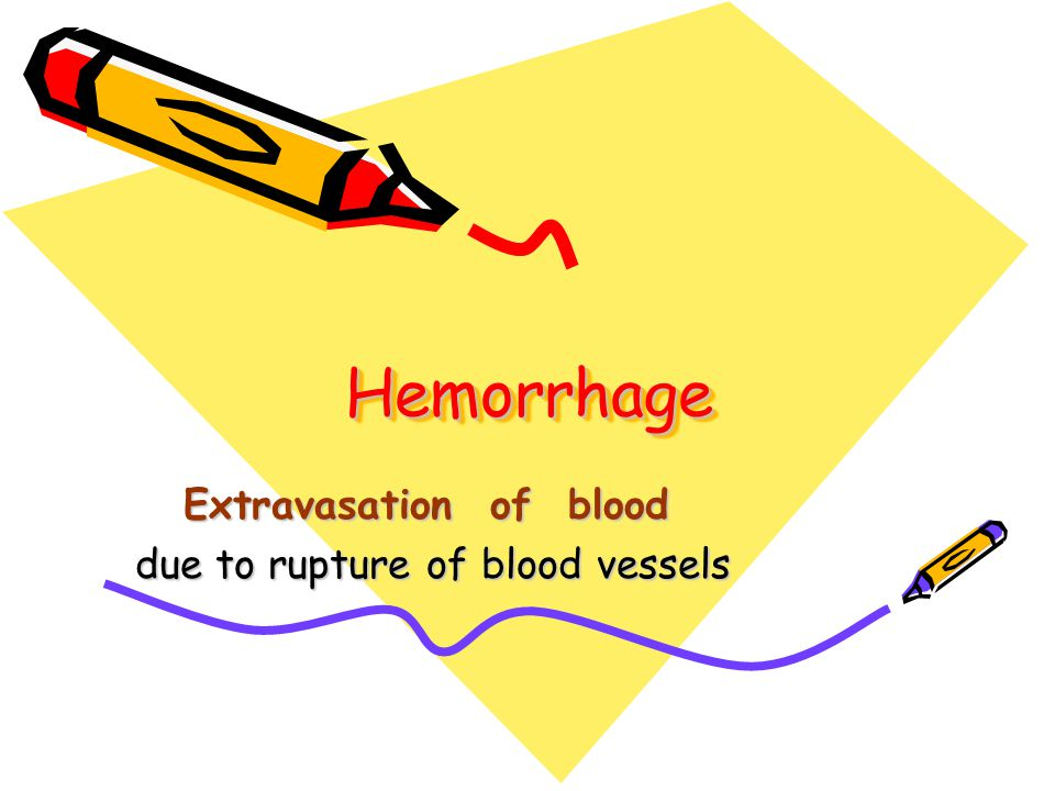 HemorrhageHemorrhage Extravasation of blood due to rupture of blood vessels