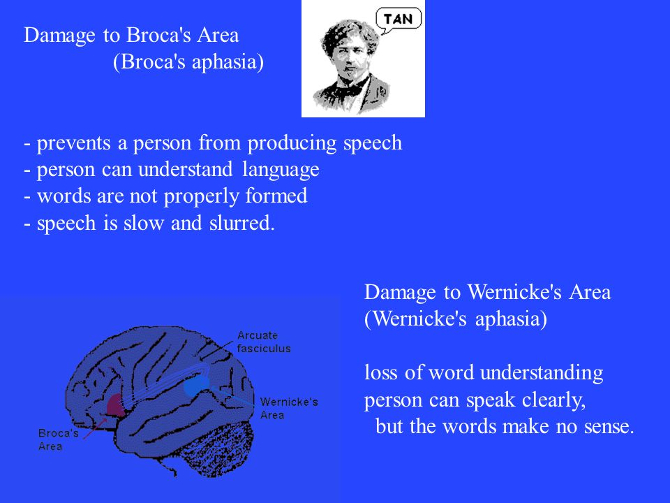 Damage to Broca s Area (Broca s aphasia) - prevents a person from producing speech - person can understand language - words are not properly formed - speech is slow and slurred.