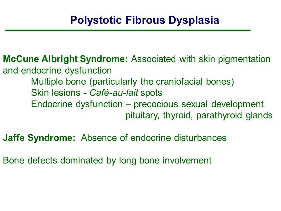 Mccune Albright Syndrome