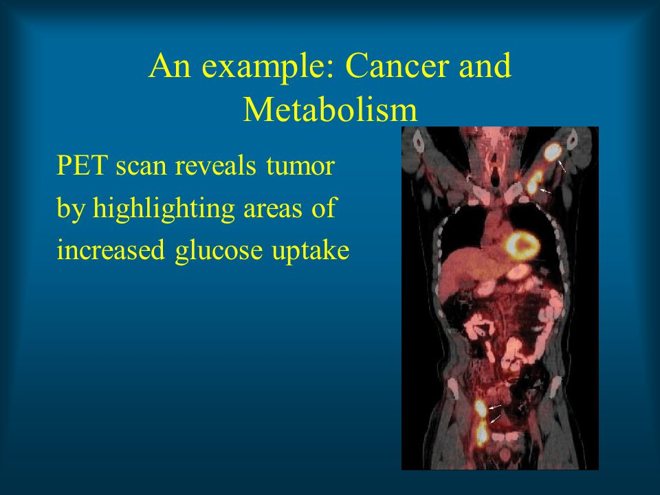 An example: Cancer and Metabolism PET scan reveals tumor by highlighting areas of increased glucose uptake