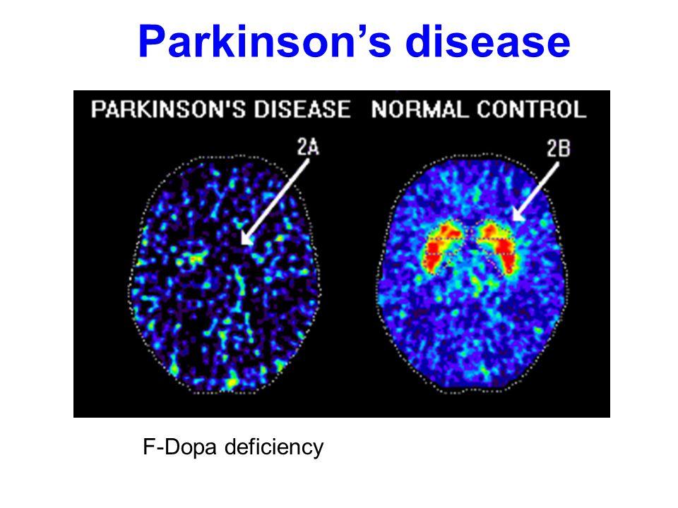 Parkinson's disease F-Dopa deficiency