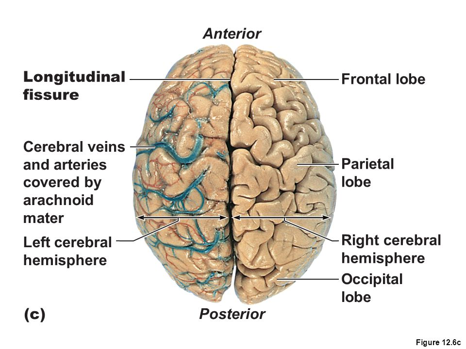 Figure 12.6c Parietal lobe Frontal lobe Right cerebral hemisphere Occipital lobe Left cerebral hemisphere Cerebral veins and arteries covered by arach