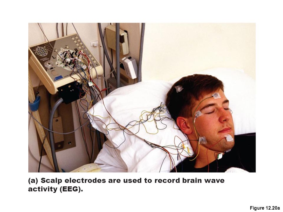 Figure 12.20a (a) Scalp electrodes are used to record brain wave activity (EEG).