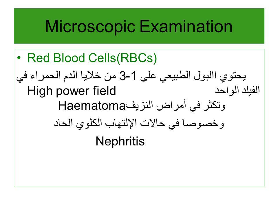 Red Blood Cells(RBCs) يحتوي االبول الطبيعي على 1-3 من خلايا الدم الحمراء في High power fieldالفيلد الواحد Haematomaوتكثر في أمراض النزيف وخصوصا في حالات الإلتهاب الكلوي الحاد Nephritis