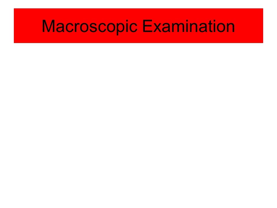 Urine Analysis Abdulaziz Alamri. 2 Macroscopic Examination