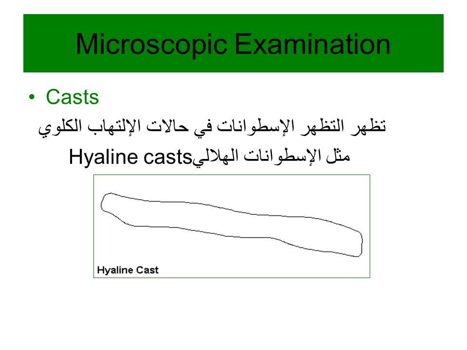 Casts تظهر التظهر الإسطوانات في حالات الإلتهاب الكلوي Hyaline castsمثل الإسطوانات الهلالي