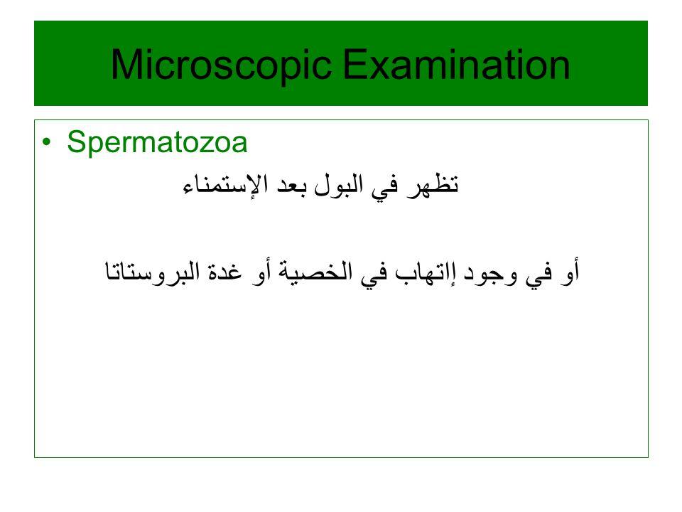 Microscopic Examination Spermatozoa تظهر في البول بعد الإستمناء أو في وجود إاتهاب في الخصية أو غدة البروستاتا