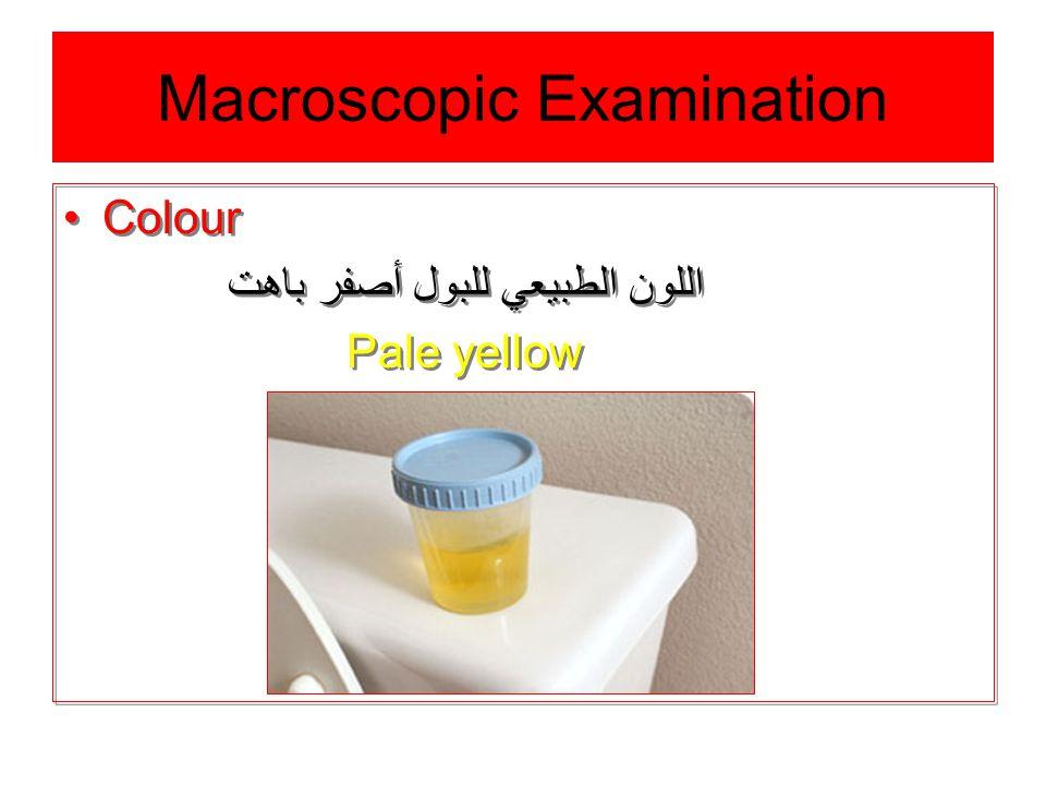 Macroscopic Examination Colour اللون الطبيعي للبول أصفر باهت Pale yellow Colour اللون الطبيعي للبول أصفر باهت Pale yellow