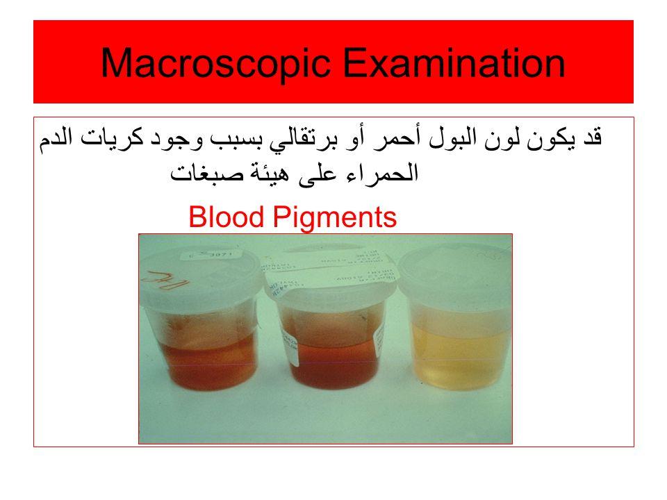 Macroscopic Examination قد يكون لون البول أحمر أو برتقالي بسبب وجود كريات الدم الحمراء على هيئة صبغات Blood Pigments