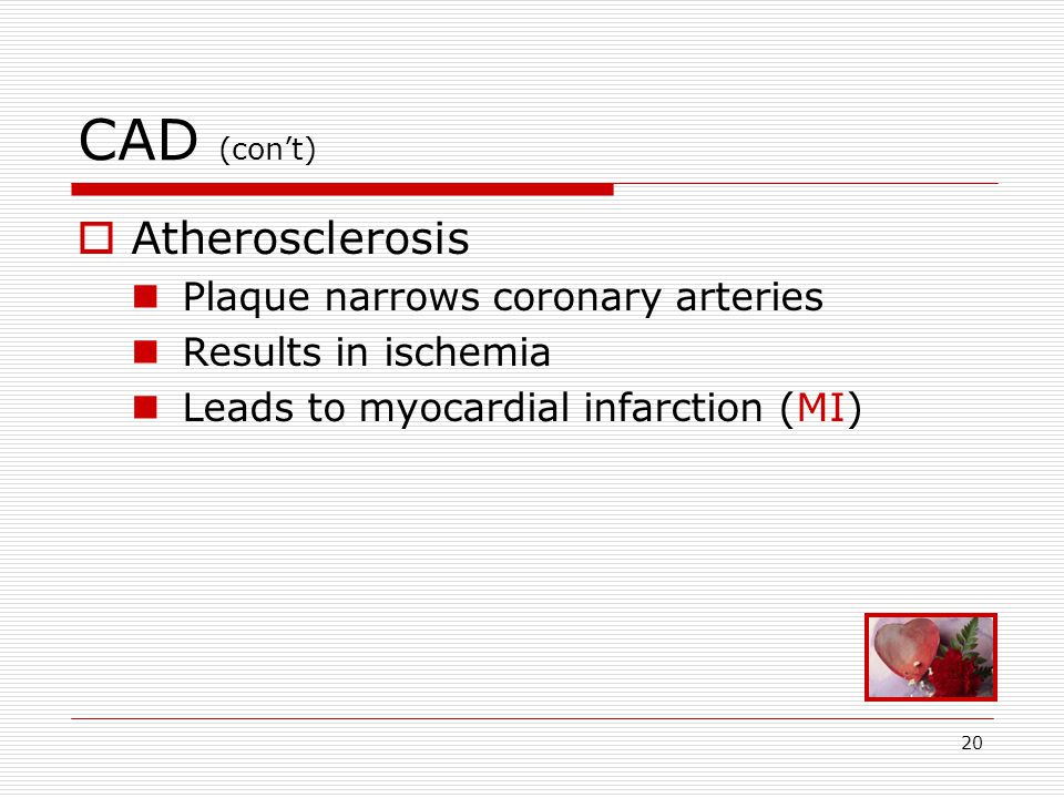 20 CAD (con't)  Atherosclerosis Plaque narrows coronary arteries Results in ischemia Leads to myocardial infarction (MI)